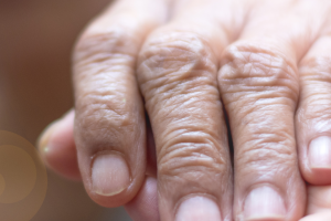 When Your Loved One is in Long Term – A Caregiver Support Group